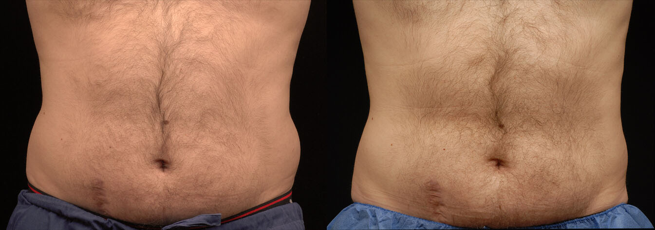 Coolsculpting At Mayoral Dermatology Coral Gables Freeze The Fat