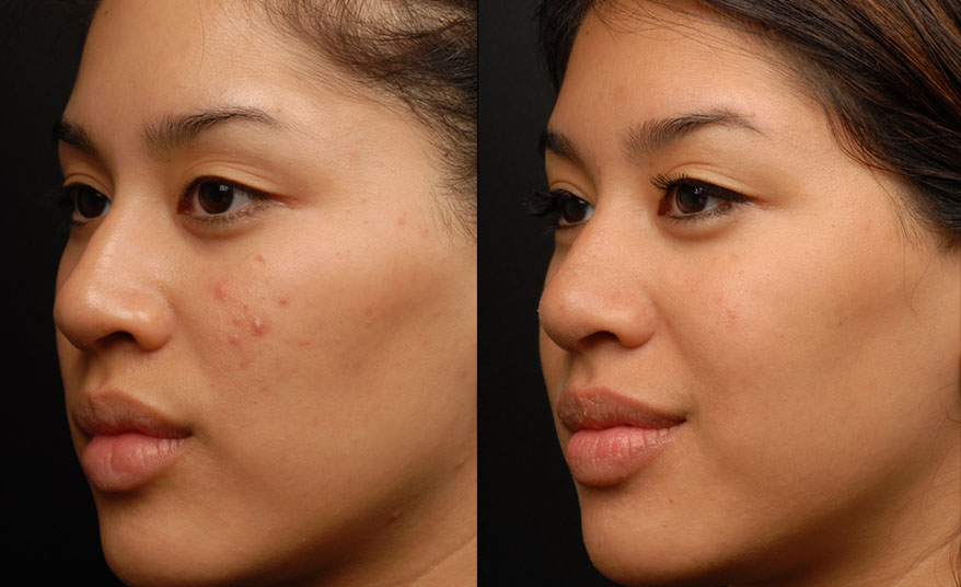 Ematrix Radio Frequency Skin Treatment At Mayoral